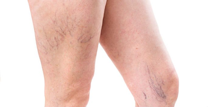 A Closer Look at Spider Veins