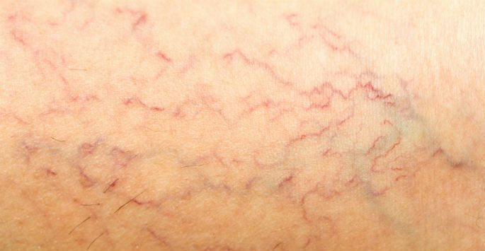 Common Causes of Spider Veins